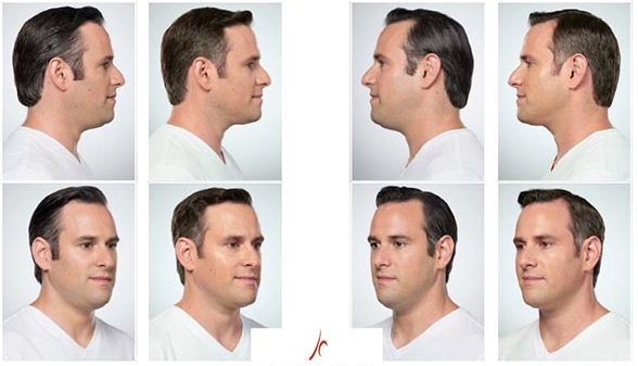 Kybella Man Picture